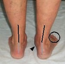 posterior tibial syndrome conformation